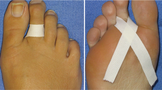 Inflamația articulațiilor degetelor de la picioare provoacă