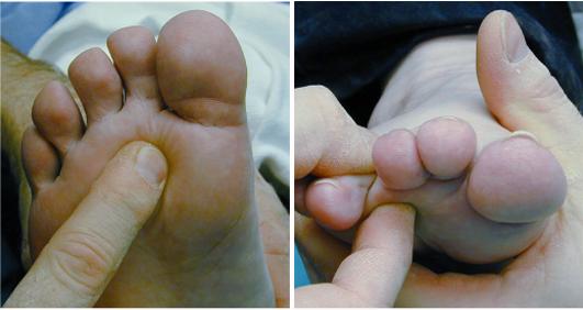 articulația genunchiului a zburat ce să facă artroza provoacă tratamentul simptomelor