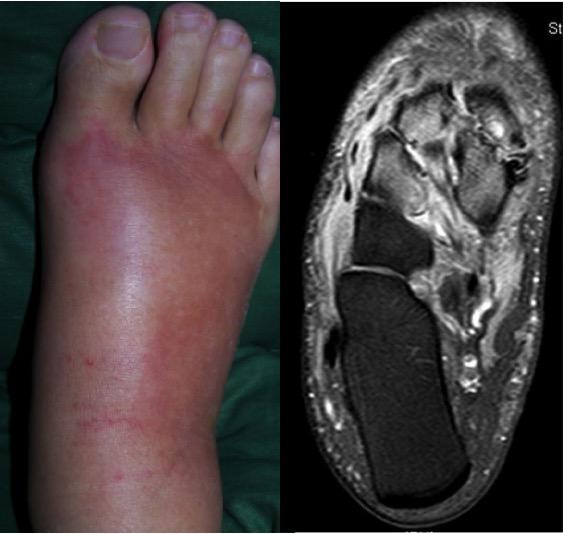 infecția articulațiilor piciorului durere în articulațiile mici de pe picior