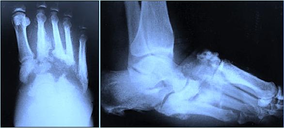 Diabetul articulațiilor degetelor de la picioare Unguente în Germania pentru dureri articulare