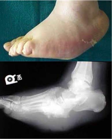 Artropatia Charcot